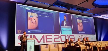 La tecnica di Rinoplastica Liquida del Dr. Segreto presentata al Congresso SIME 2019