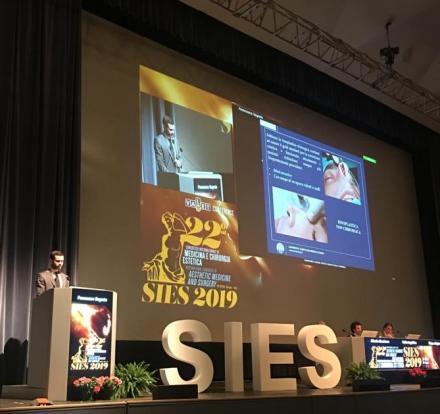 La tecnica di Rinoplastica Liquida del Dr. Segreto presentata al Congresso SIES 2019