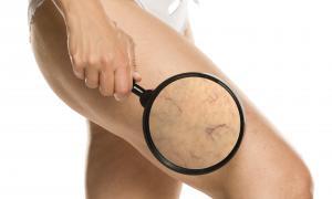 Capillari, vene, angiomi, altre malformazioni vascolari