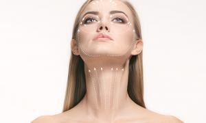 Lifting del volto e del collo