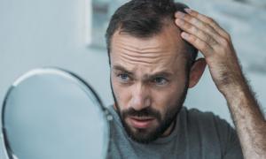 Trattamento dell'alopecia